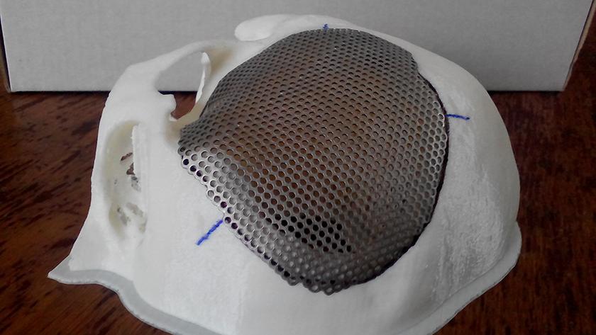 Титановая сетка на черепе