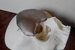 Печать черепа титановая сетка